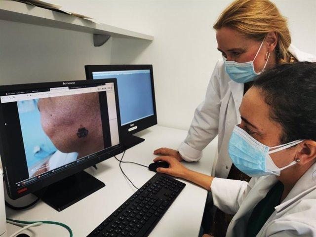 Archivo - El impacto de la Covid 19 reduce en un 62% la detección precoz del melanoma en el Hospital Costa del Sol