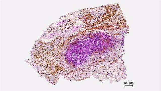 Archivo - Imagen de anatomía patológica que muestra la biodistribución de las nanopartículas magnéticas (de color marrón) en el tumor.