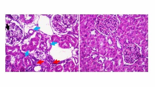Imágenes microscópicas que muestran el aspecto anormal del riñón (con daños renales) en las ratas obesas y diabéticas sin tratamiento con melatonina (panel izquierdo) y en la de derecha muestran mejora del daño renal de las tratas con melatonina.