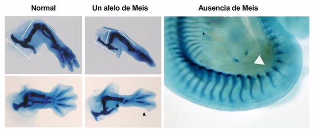 Archivo - Tinciones esqueléticas de extremidades inferiores en embriones normales, con un alelo o en ausencia total de Meis. Los embriones con una sola copia carecen de peroné y dos dedos posteriores (flechas negras).