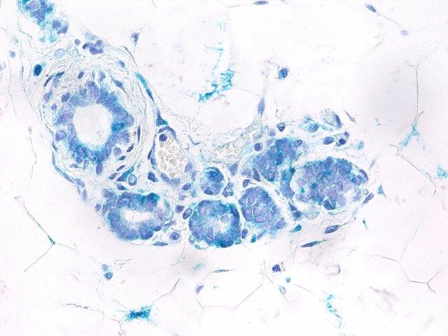 Archivo - Descubren una conexión entre senescencia y células madre provocada por una proteína iniciadora del cáncer de mama