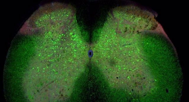 La médula espinal de un ratón con ELA. Las células verdes son interneuronas inhibidoras.