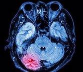 Foto: Identifican un fármaco que puede impedir el desarrollo de demencia tras sufrir repetidos golpes en la cabeza