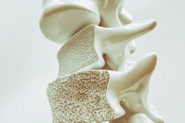 Archivo - Osteoporosis