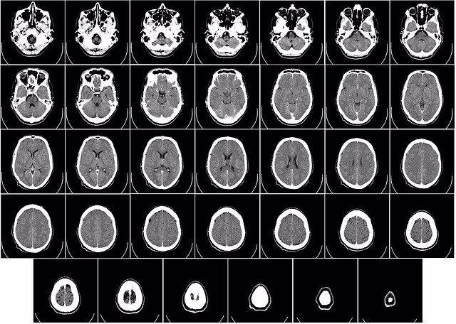 Archivo - Tomografía Computerizada Ct Radiografía Cerebro.