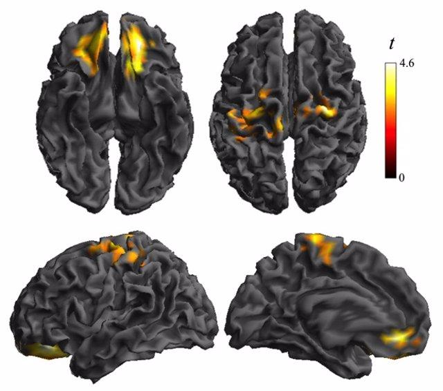 Alteración de la conectividad en la corteza orbitofrontal y somatosensorial