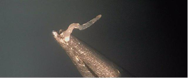 ?Imagen Obtenida Por Biomicroscopía En La Que Se Observa, Sujeto Con Unas Pinzas, Un Nematodo (Gusano) De 5-6 Mm.
