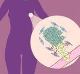 Foto: Un gen de las células que rodean los tumores, clave en la progresión del cáncer de mama
