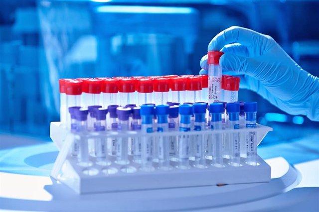 Archivo - Test PCR