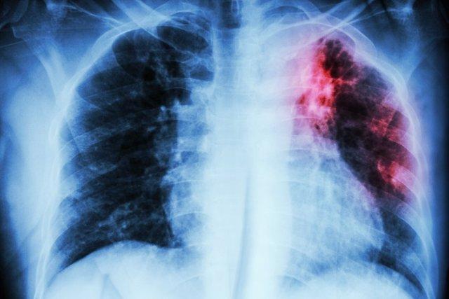 Archivo - Fibrosis pulmonar, pulmones.