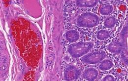 Archivo - Intestino humano de un paciente con enfermedad inflamatoria intestinal.