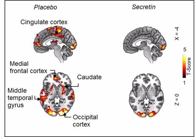 Imágenes de resonancia magnética que muestran la disminución de la actividad de los circuitos de recompensa durante una tarea de señalización de alimentos después de la infusión de secretina.