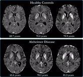Foto: Las proteínas inflamatorias pueden ralentizar el deterioro cognitivo en ancianos