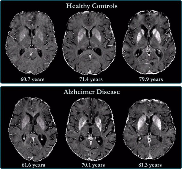 Archivo - La acumulación de hierro en el cerebro está relacionada con el deterioro cognitivo en pacientes con Alzheimer.