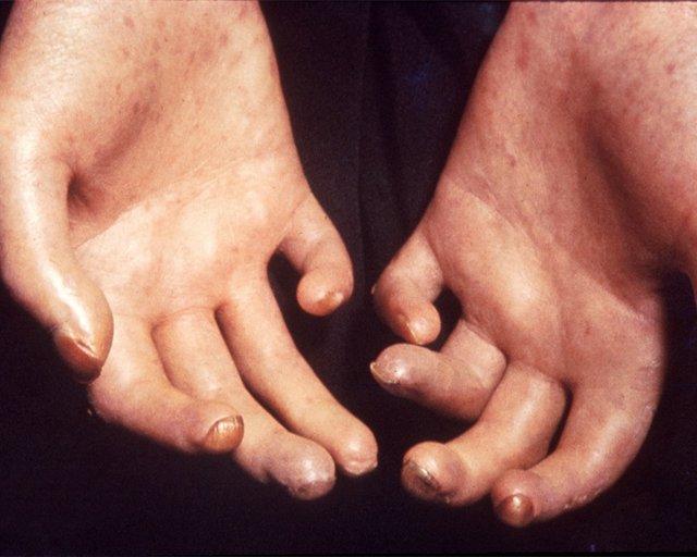Archivo - Esclerodermia