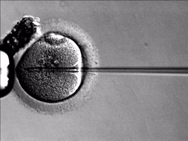 Archivo - Reproducción asistida, óvulo, fecundación