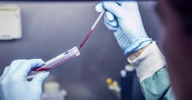Archivo - Desarrollado un nuevo análisis de sangre para detectar la exposición reciente a la malaria 'recurrente' o vivax.