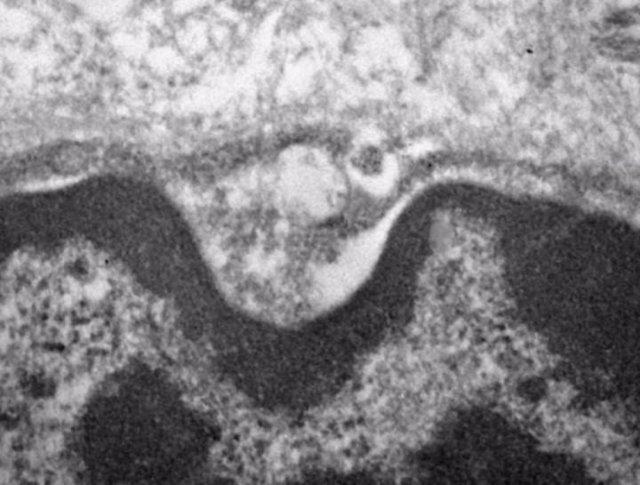 Imagen de microscopio electrónico que muestra el nuevo coronavirus dentro de las glándulas salivales