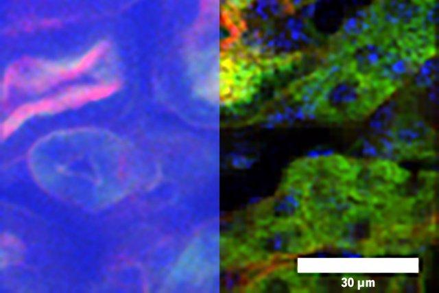Archivo - Imagen de microscopía de enfoque temporal (TFM), a la izquierda, e imagen de DEEP-TFM, a la derecha, de un riñón captado a través de un medio de dispersión