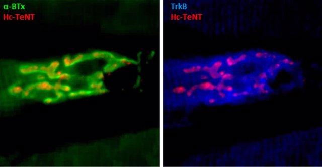 Imagen del microscopio del músculo de la rata.