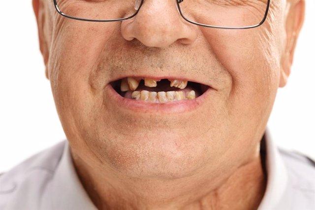 Archivo - Hombre sin dientes.