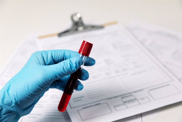 Trublood is an non-invasive liquid biopsy for diagnosis of prostate cancer