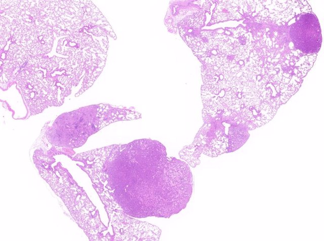 Tumor pulmonar inducido por KRAS4A.