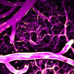 El calcio (rosa) dirige el flujo sanguíneo en los vasos sanguíneos del cerebro.