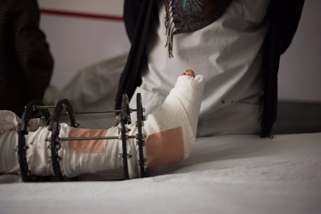 Archivo - Un niño herido a causa de la explosión de una bomba en Afganistán