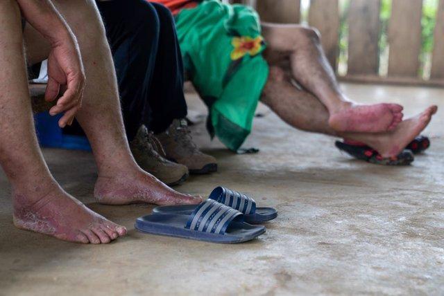 Archivo - Migrantes atendidos por MSF en Panamá tras cruzar el tapón del Darién