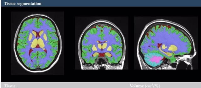 Investigadores de la Universitat Politècnica de València (UPV) y el Centro Nacional para la Investigación Científica de Francia (CNRS, en sus siglas en francés), han desarrollado una nueva herramienta on line para el estudio del cerebro:  vol2Brain.
