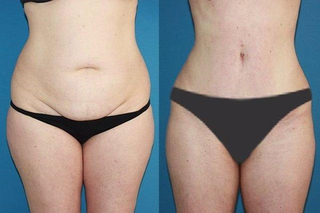 Corrige el abdomen y crea un nuevo ombligo con la Abdominoplastia