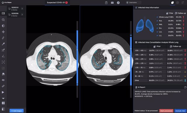 InferRead CT Pneumonia compares the progress of infection and quantifies changes over tim