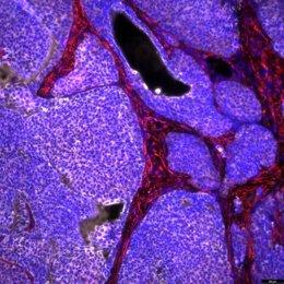 Cáncer de mama de ratón con el componente no tumoral (rojo) y las células tumorales (blanco).