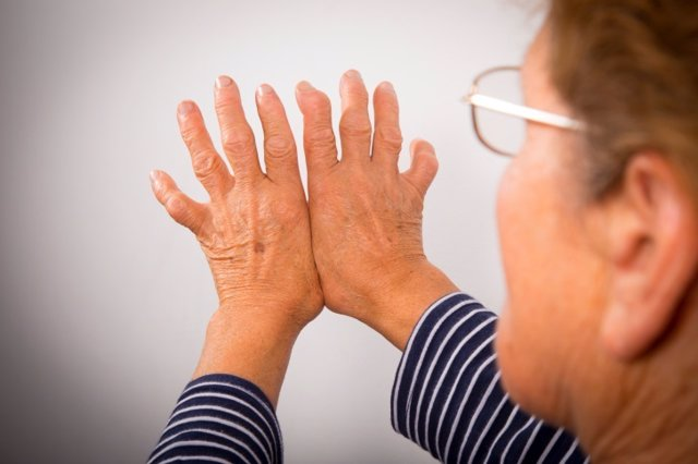 Archivo - Hand Deformed From Rheumatoid Arthritis