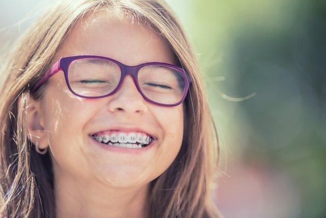 Archivo - Breve guía sobre ortodoncias: ¿Por qué hay tantos niños con brackets?