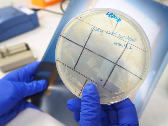 Archivo - Placa de Petri con muestras celulares para la investigación de la leucemia en el CBM.