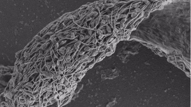 Micrografía electrónica de barrido de espermatozoides humanos pegados e inmovilizados por un anticuerpo antiespermático.
