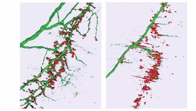 El efecto del microARN-218 en las sinapsis .