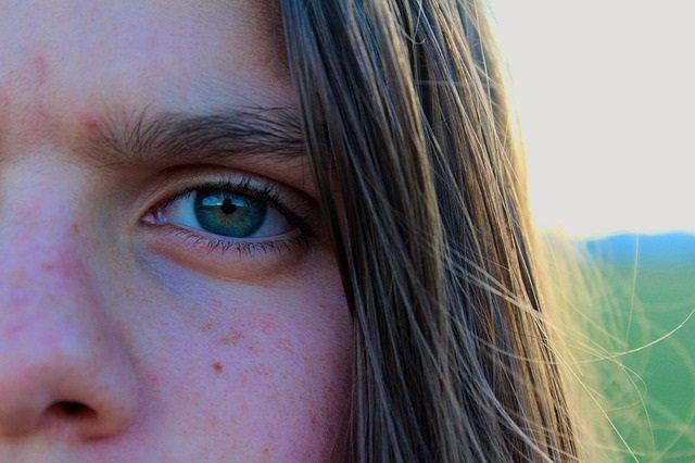 Archivo - Rosácea, problemas en la piel