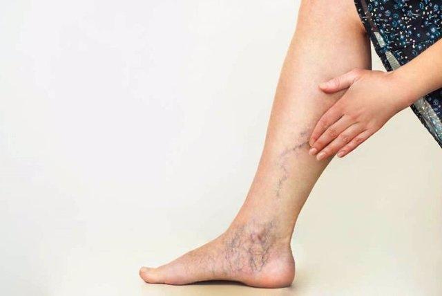 Varices en la pierna.