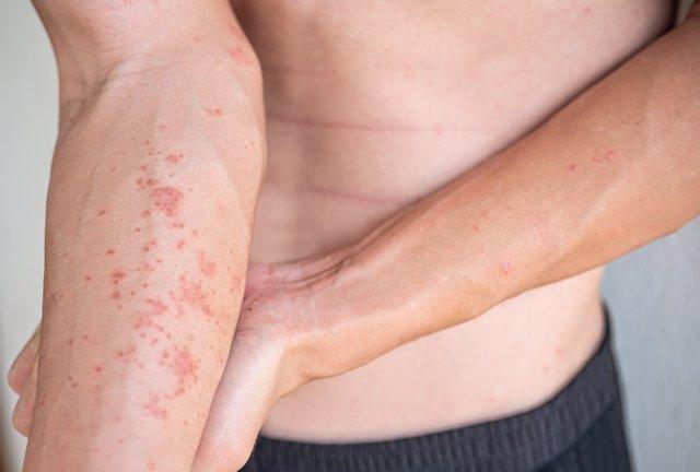 Archivo - Dermatitis atópica