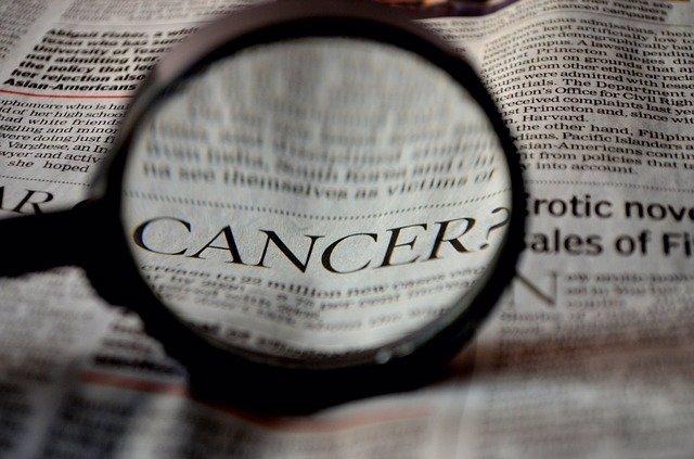 Archivo - Palabra cáncer. Lupa. Recurso.