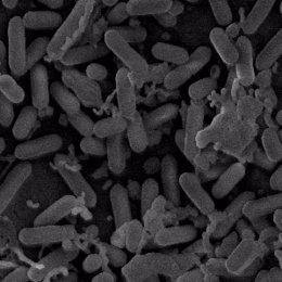 Archivo - Imagen microscópica de bacterias del género Listeria