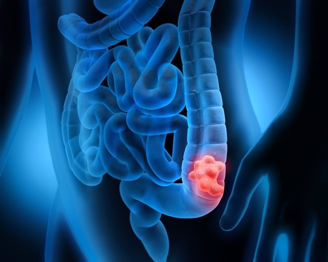 Archivo - Cancer de colon