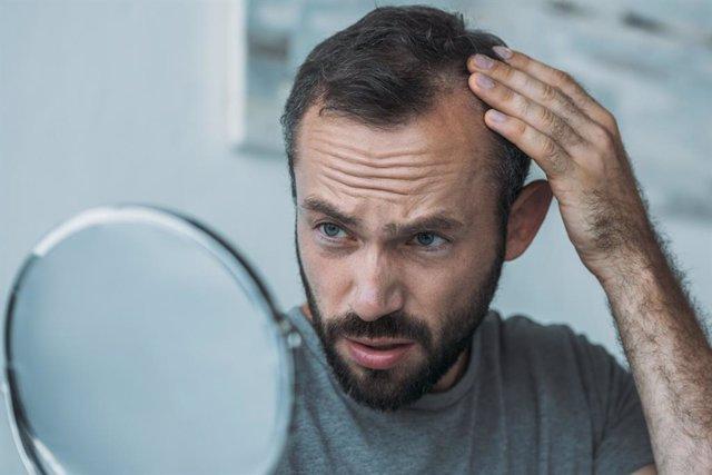 Archivo - Hombre mirándose al espejo, viendo si se le cae el cabello.