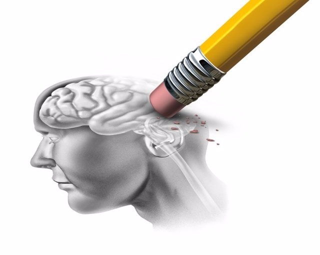 Archivo - Demencia, Alzheimer