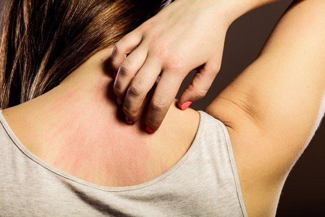 Archivo - Woman scratching her back closeup