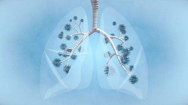 Archivo - Coronavirus, pulmón