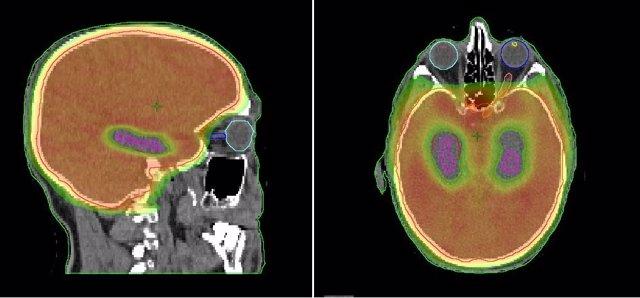Los resultados del estudios están provocando cambios en la práctica clínica y en el abordaje de los casos